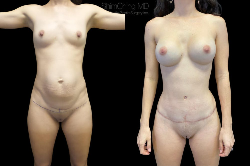 Mommy Makeover Gallery - Patient 38299005 - Image 2