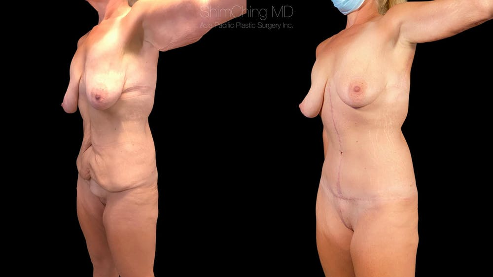 Post-Bariatric Body Contouring Gallery - Patient 38299009 - Image 2