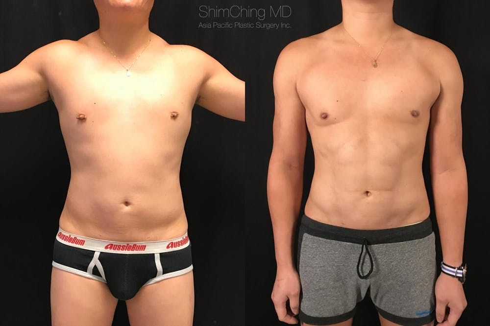 HiDefinition Liposuction Gallery - Patient 38299008 - Image 3