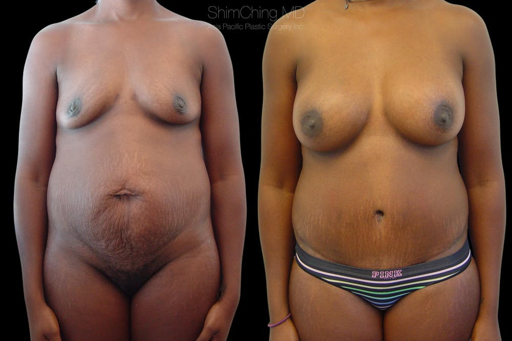 Mommy Makeover Gallery - Patient 38299010 - Image 1