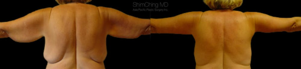 Post-Bariatric Body Contouring Gallery - Patient 38299011 - Image 1