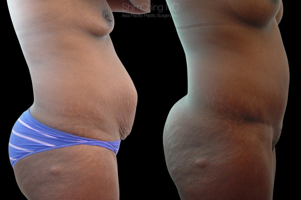 Mommy Makeover Gallery - Patient 38299010 - Image 3