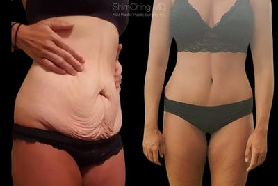 Post-Bariatric Body Contouring Gallery - Patient 38299014 - Image 1