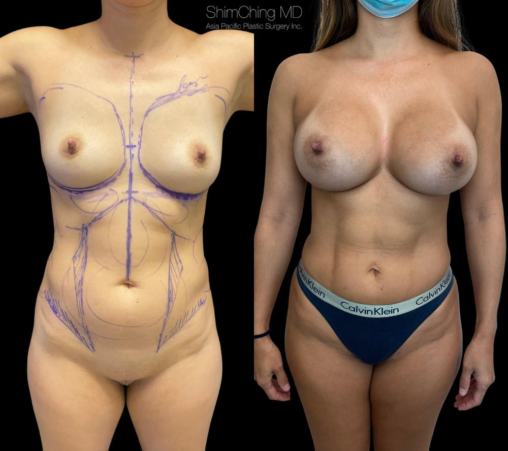 Mommy Makeover Gallery - Patient 38299021 - Image 1