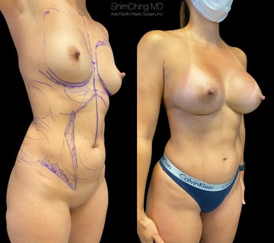Mommy Makeover Gallery - Patient 38299021 - Image 2