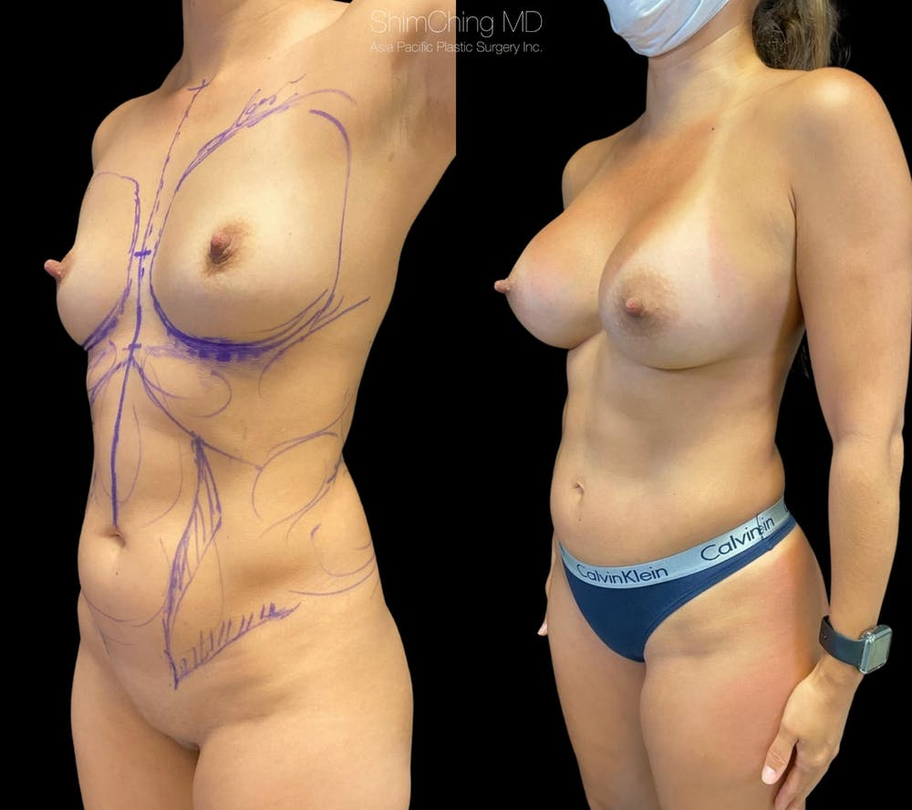 Mommy Makeover Gallery - Patient 38299021 - Image 3