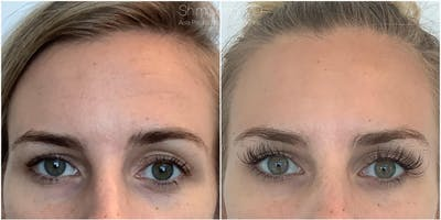 Botox Gallery - Patient 38307313 - Image 1