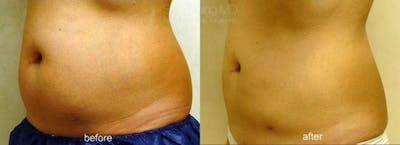 CoolSculpting Gallery - Patient 38307327 - Image 1