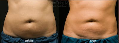 CoolSculpting Gallery - Patient 38307328 - Image 1