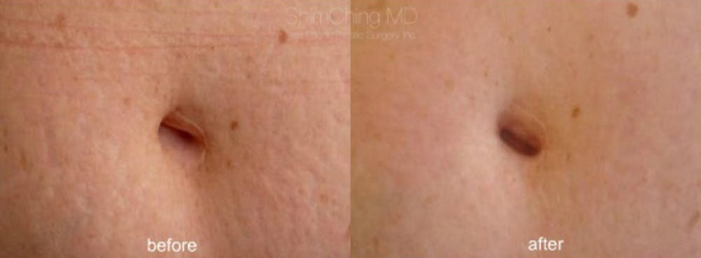 Laser Resurfacing Gallery - Patient 38307330 - Image 1