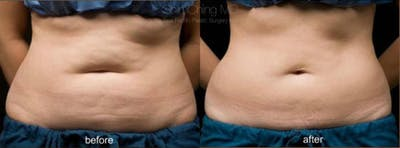 CoolSculpting Gallery - Patient 38307331 - Image 1