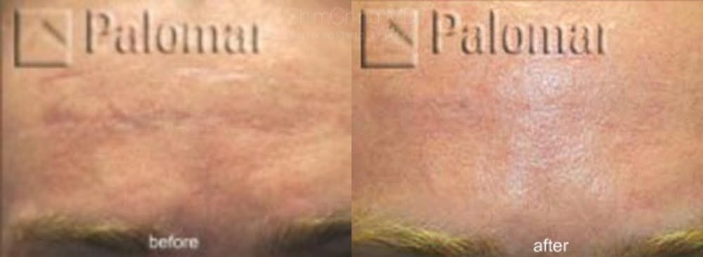 Laser Resurfacing Gallery - Patient 38307332 - Image 1