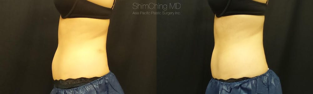 CoolSculpting Gallery - Patient 38307334 - Image 1