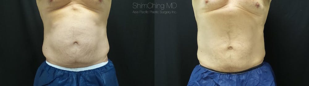 CoolSculpting Gallery - Patient 38307338 - Image 1