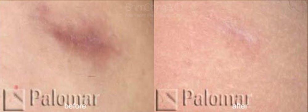 Laser Resurfacing Gallery - Patient 38307337 - Image 1