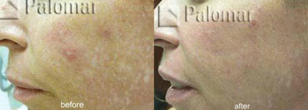 Laser Resurfacing Gallery - Patient 38307344 - Image 1