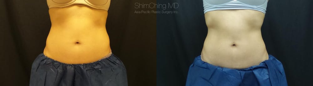 CoolSculpting Gallery - Patient 38307345 - Image 1