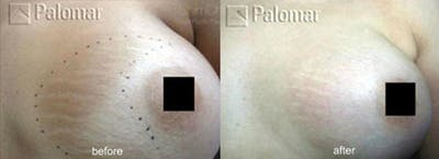 Laser Resurfacing Gallery - Patient 38307347 - Image 1