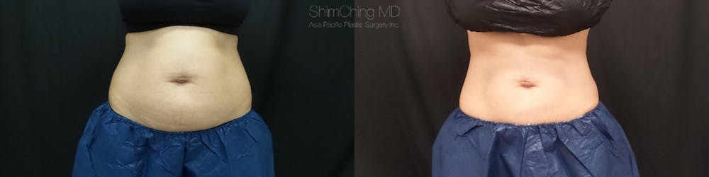 CoolSculpting Gallery - Patient 38307350 - Image 1