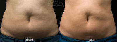 CoolSculpting Gallery - Patient 38307361 - Image 1
