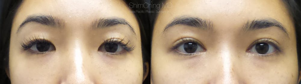 Asian Eyelid Gallery - Patient 38307390 - Image 1