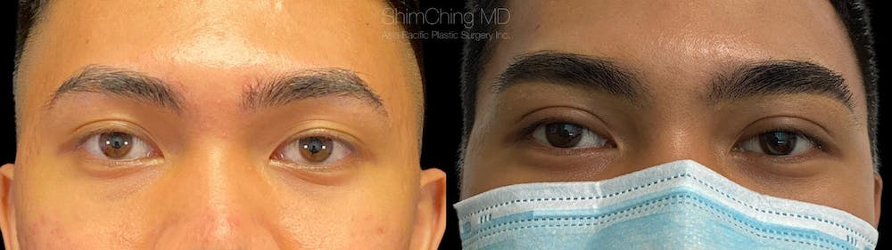 Asian Eyelid Gallery - Patient 38307394 - Image 1