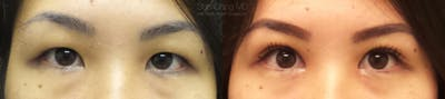 Asian Eyelid Gallery - Patient 38307396 - Image 1