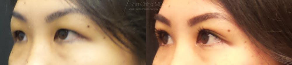 Asian Eyelid Gallery - Patient 38307396 - Image 2