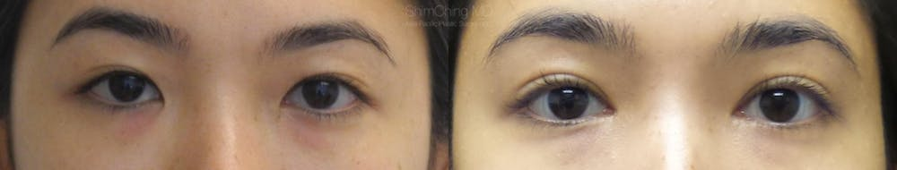 Asian Eyelid Gallery - Patient 38307397 - Image 1