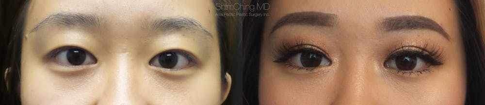 Asian Eyelid Gallery - Patient 38307400 - Image 1