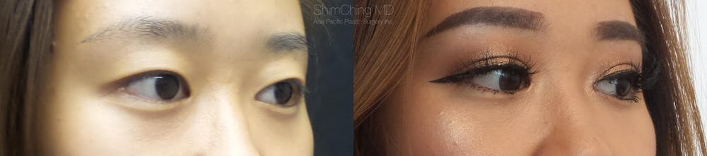 Asian Eyelid Gallery - Patient 38307400 - Image 2