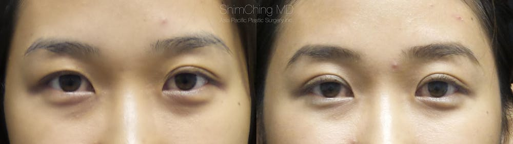 Asian Eyelid Gallery - Patient 38307401 - Image 1