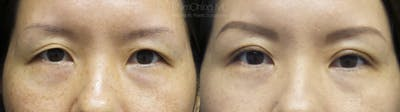 Asian Eyelid Gallery - Patient 38307404 - Image 1