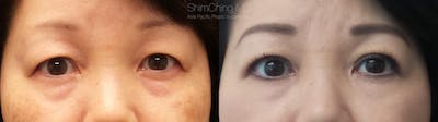 Asian Eyelid Gallery - Patient 38307405 - Image 1