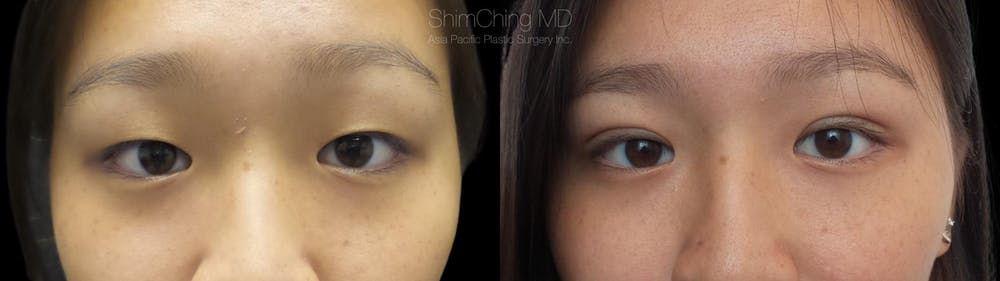 Asian Eyelid Gallery - Patient 38307408 - Image 1