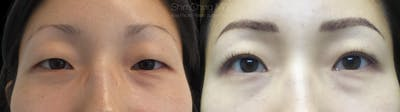 Asian Eyelid Gallery - Patient 38307411 - Image 1