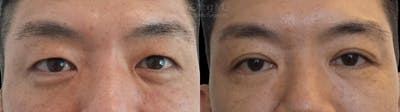 Asian Eyelid Gallery - Patient 38307420 - Image 1