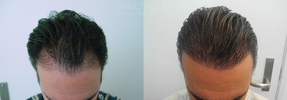 Hair Restoration Gallery - Patient 38307508 - Image 1