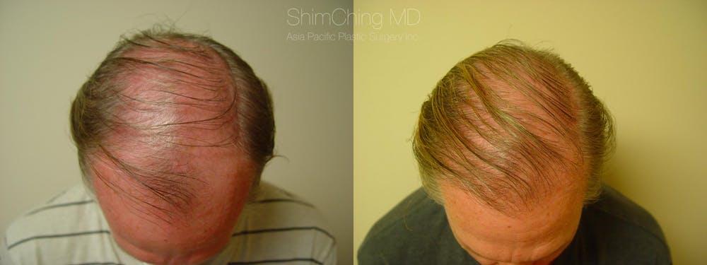 Hair Restoration Gallery - Patient 38307510 - Image 1