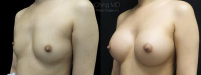 Asian Breast Implants Gallery - Patient 38307517 - Image 1
