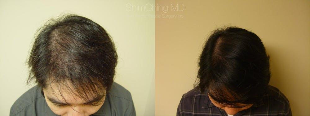 Hair Restoration Gallery - Patient 38307518 - Image 1