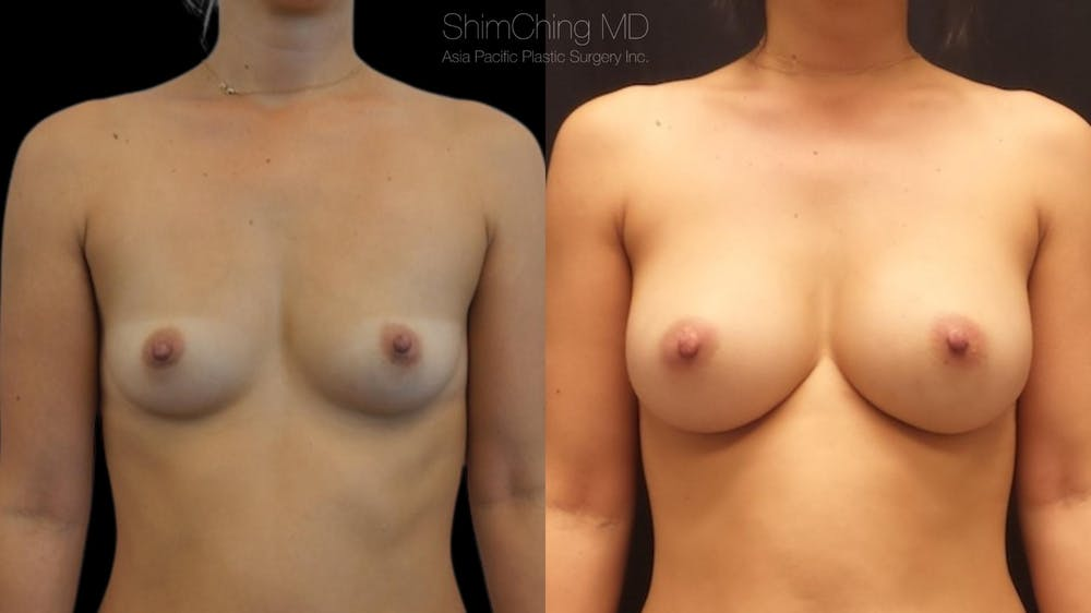 Asian Breast Implants Gallery - Patient 38307521 - Image 1