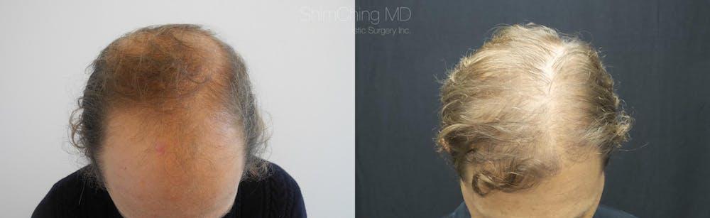 Hair Restoration Gallery - Patient 38307522 - Image 1