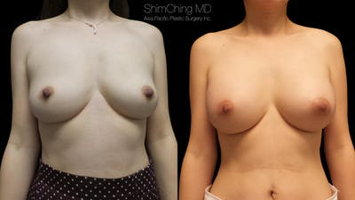 Asian Breast Implants Gallery - Patient 38307523 - Image 1