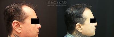 Hair Restoration Gallery - Patient 38307524 - Image 1