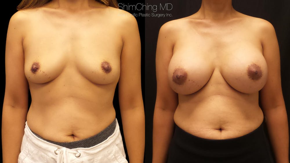 Asian Breast Implants Gallery - Patient 38307525 - Image 1
