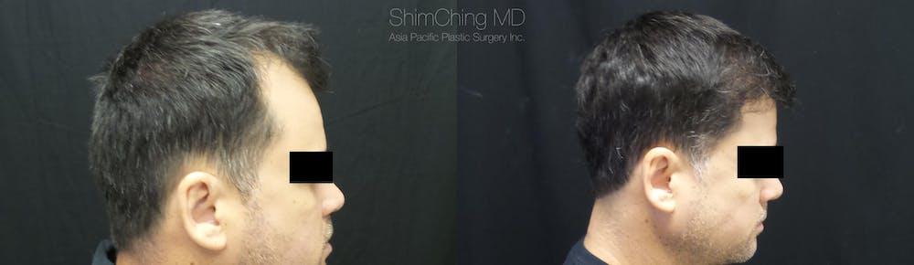 Hair Restoration Gallery - Patient 38307528 - Image 3