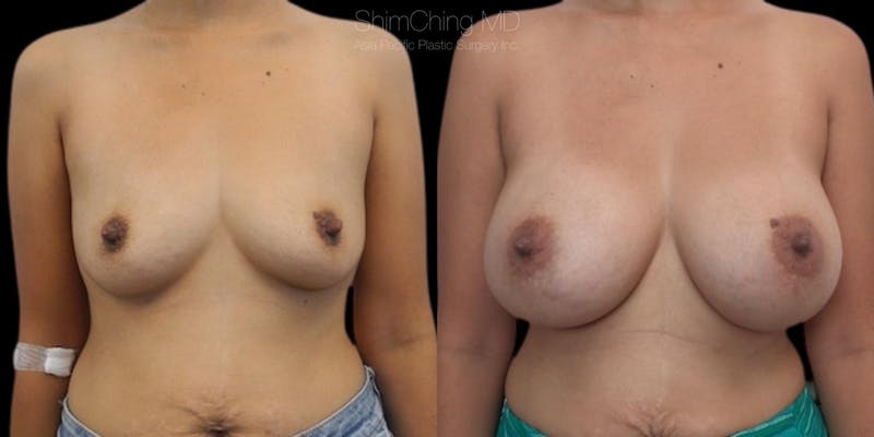 Asian Breast Implants