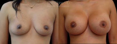 Asian Breast Implants Gallery - Patient 38307529 - Image 1