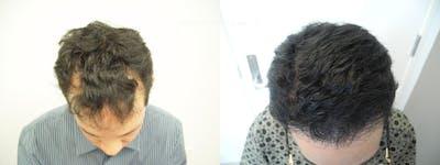 Hair Restoration Gallery - Patient 38307530 - Image 1